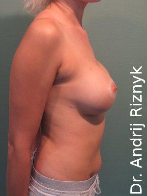 Результати пластика грудей