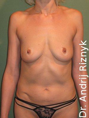 птоз грудей. результати операції