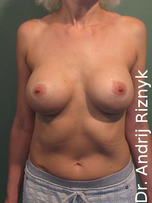 Пластична операція мамопластика резултати
