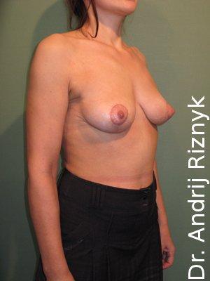 молочні залози. мамопластика до після