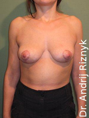 корекція молочних залоз до після