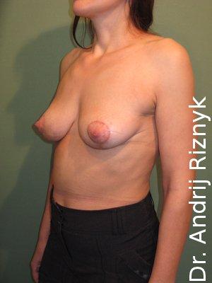 пластика молочних залоз фото