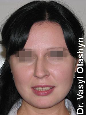Пластика носа Олашин