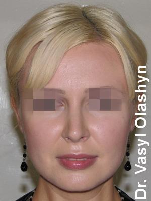 Ринопластика Олашин