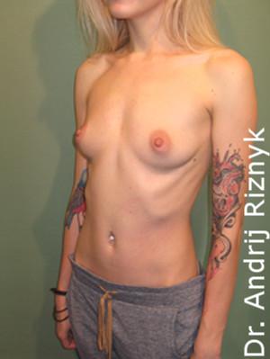 Збільшення грудей. Увеличение груди.А. Різник