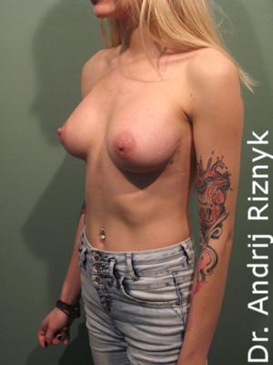 Увеличение груди. Збільшення грудей. А. Різник