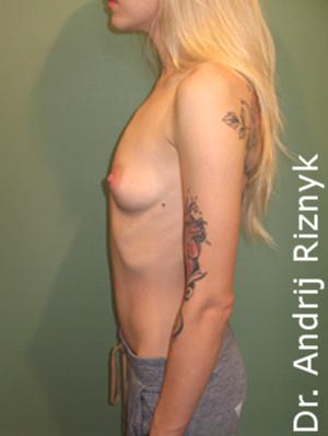 Збільшення грудей. А. Різник. Увеличение груди
