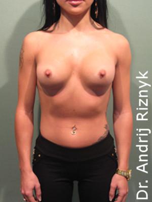 Збільшення грудей. А. Різник