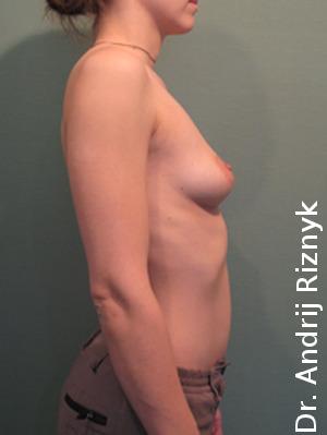 Увеличение груди. Збільшення грудей.