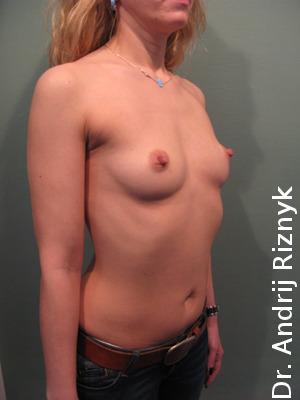Збільшення грудей. Увеличение груди