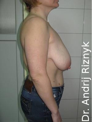 фото зменшення грудей