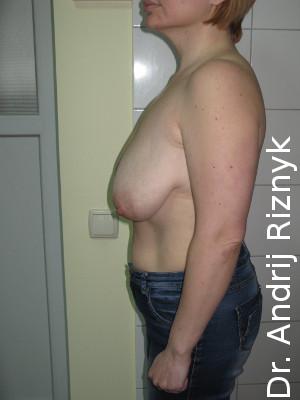 зменшення грудей підтяжкою