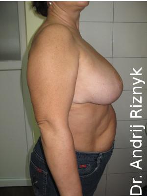 зменшити груди пластикою