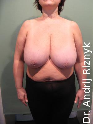 гігантомастія і зменшення грудей