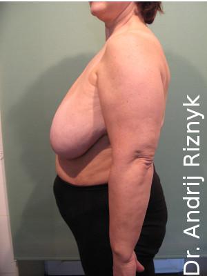 пластична хірургія зменшення грудей