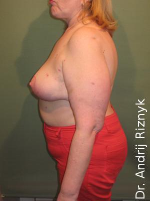 підтяжка та зменшення грудей