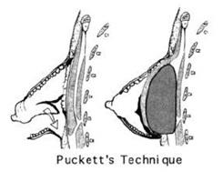 Типы тубулярности груди. Маммопластика. Андрей Резник
