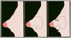 Качество жизни при лечении тубулярности груди. Маммопластика.