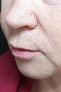 хейлопластика губ цена