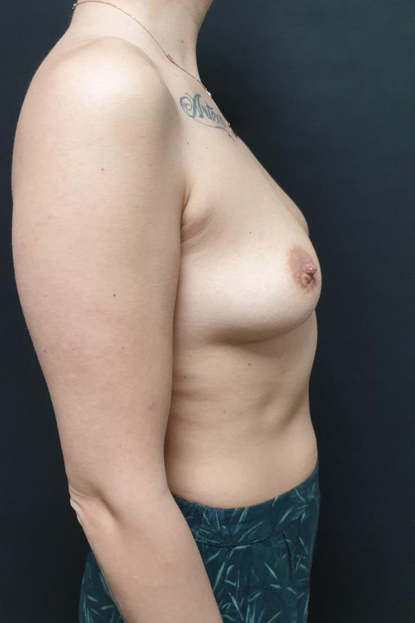 маммопластика фото до після
