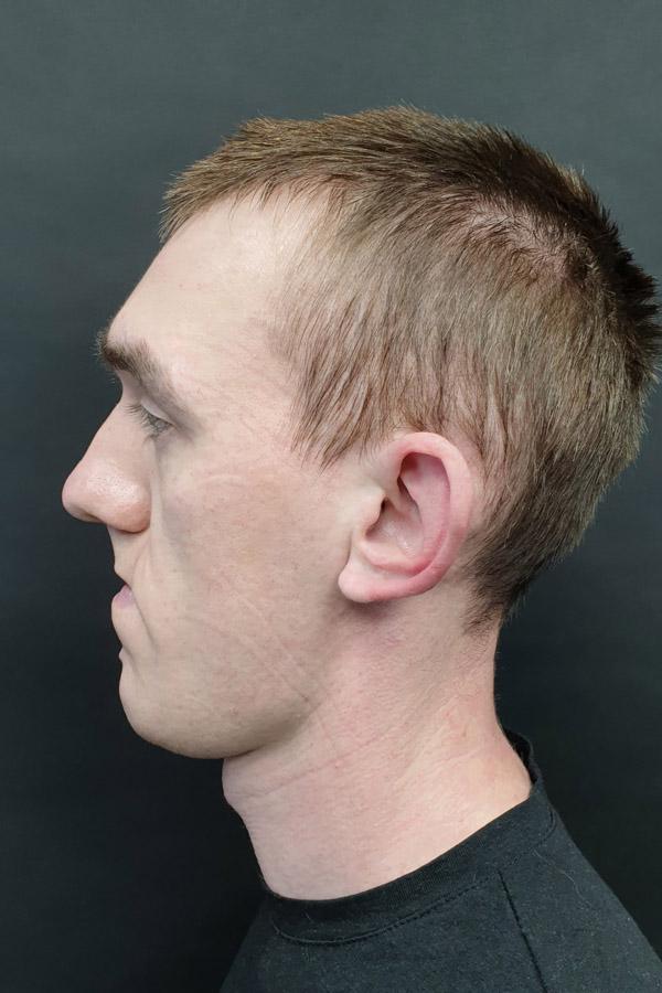 корекція клаповухості у чоловіків