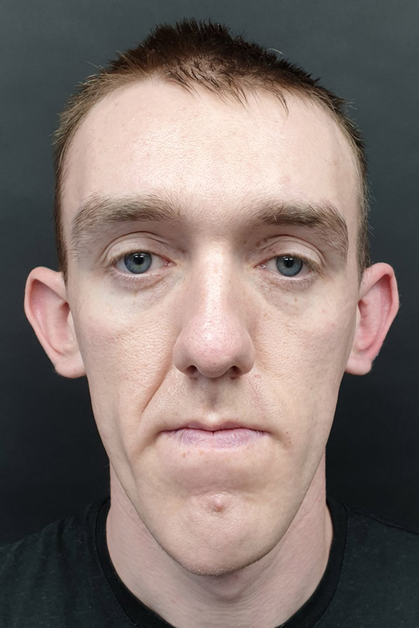 пластика вух у чоловіків