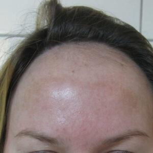 трансплантація волосся ціна, фото