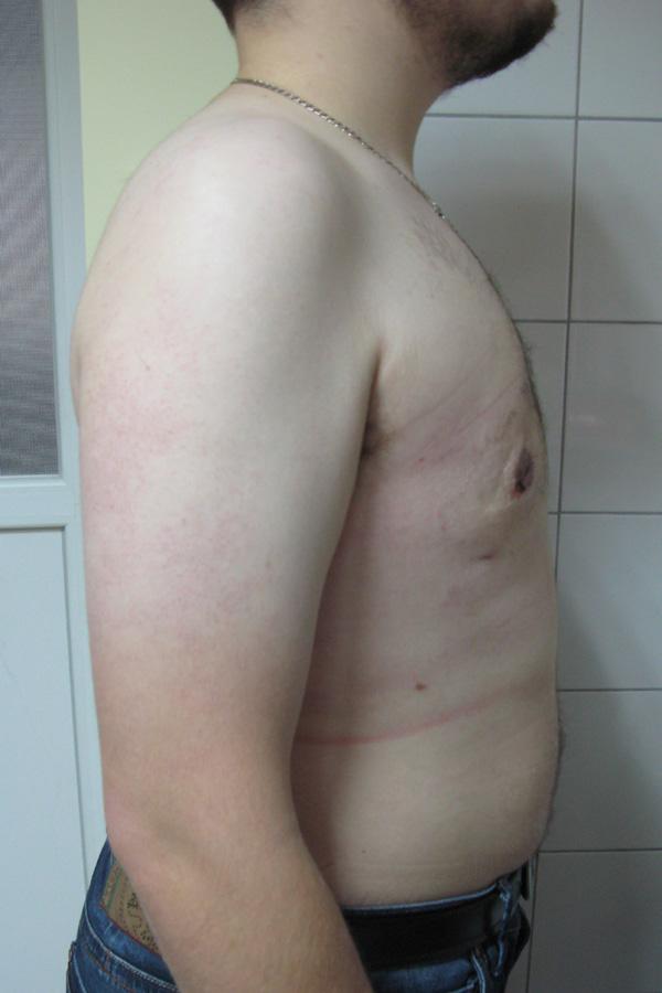 хірургічне лікування гінекомастії львів