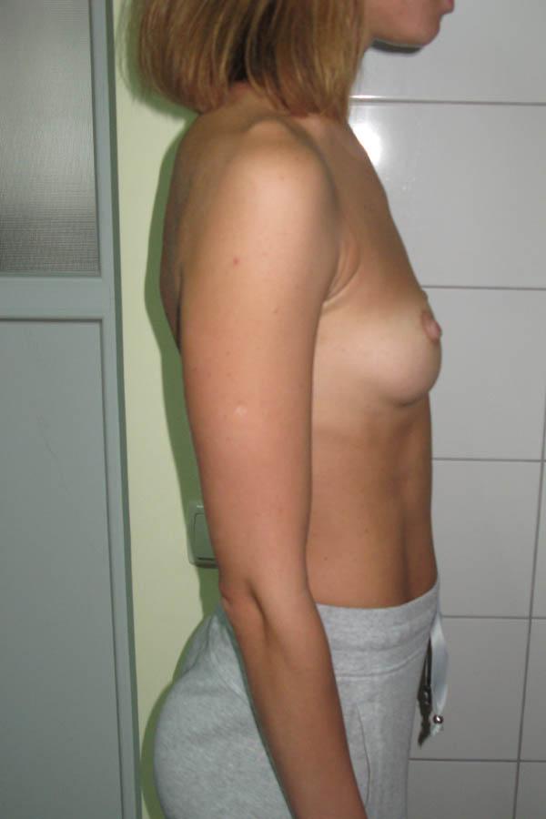 збільшуюча маммопластика