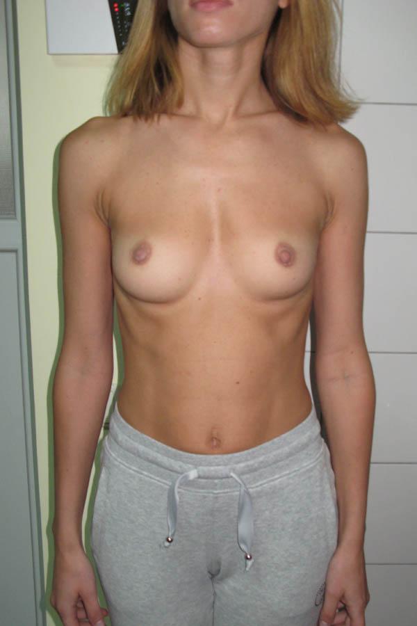 збільшення грудей фото