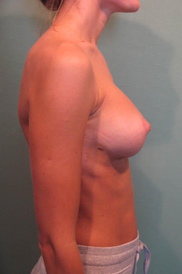 збільшення грудей маммопластика