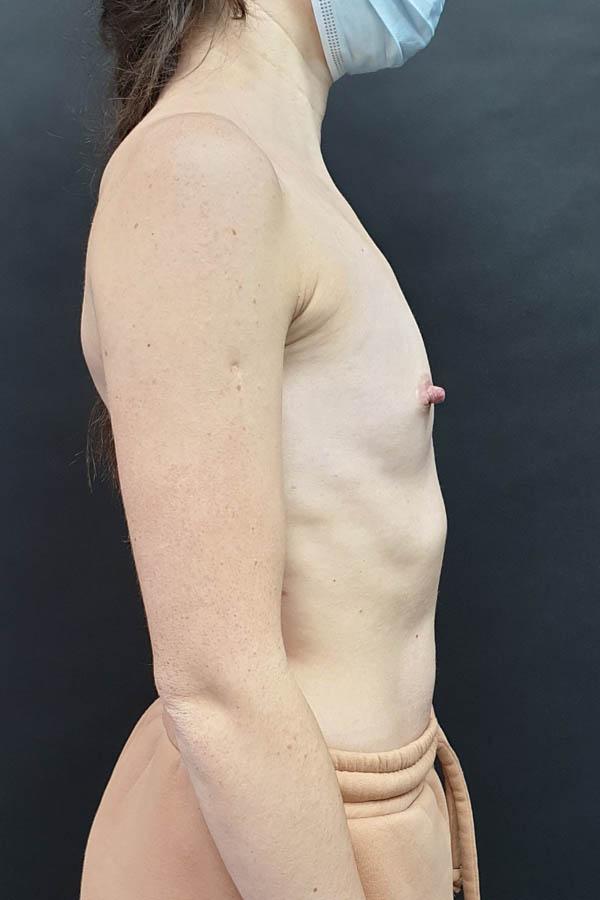 протезування грудей фото