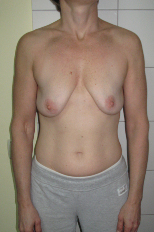 мастопексія