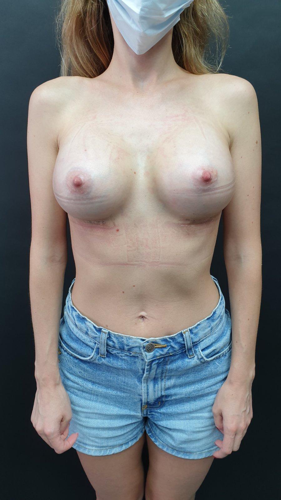 збільщення грудей фото після