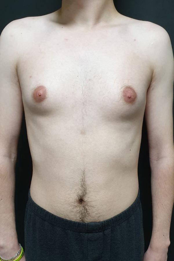 https://pro-clinic.com/ua/otoplastyka.htmlидалення гінекомастії фото