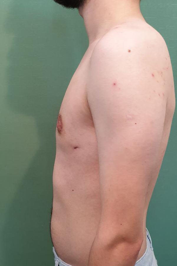 фото результатів гінекомастія