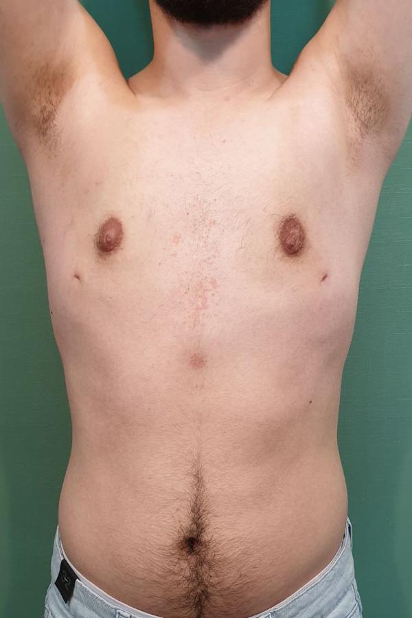 хірургічна корекція гінекомастії