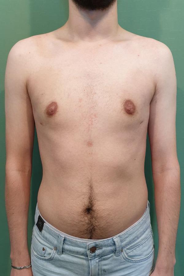 хірургічне лікування гінекомастії