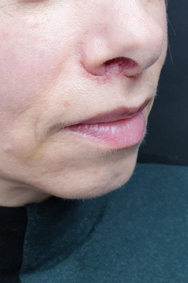 підтяжка губ булхорн фото