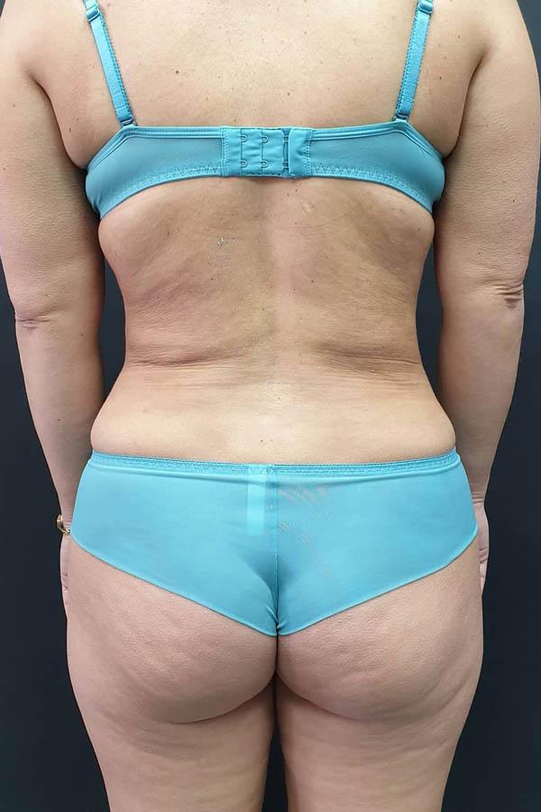 ліпосакція талії до після