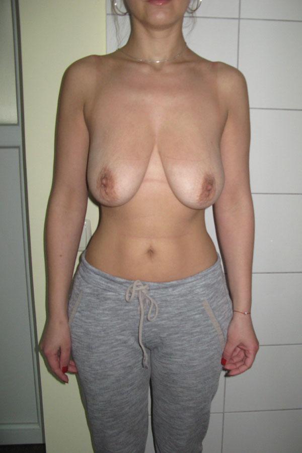 підтяжка грудей фото