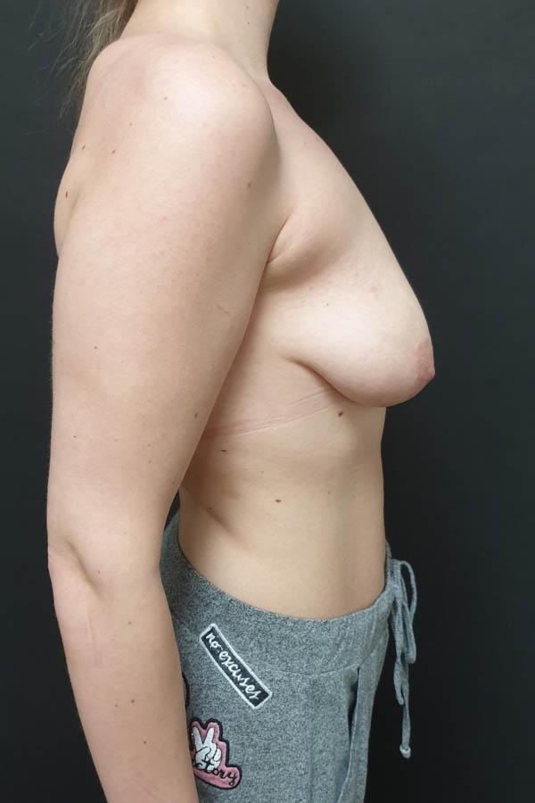 підтяжка грудей до і після