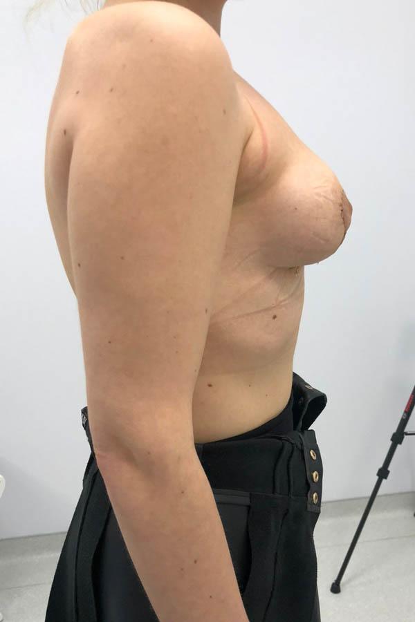 мастопексія результати