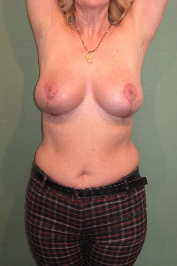 мастопексія та підтяжка грудей