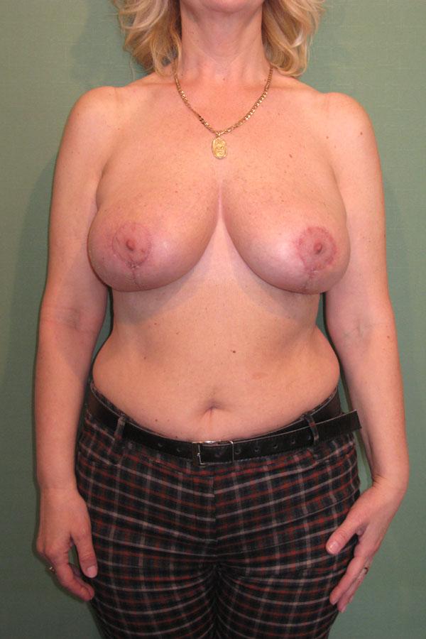 підтяжка грудей та мастопексія