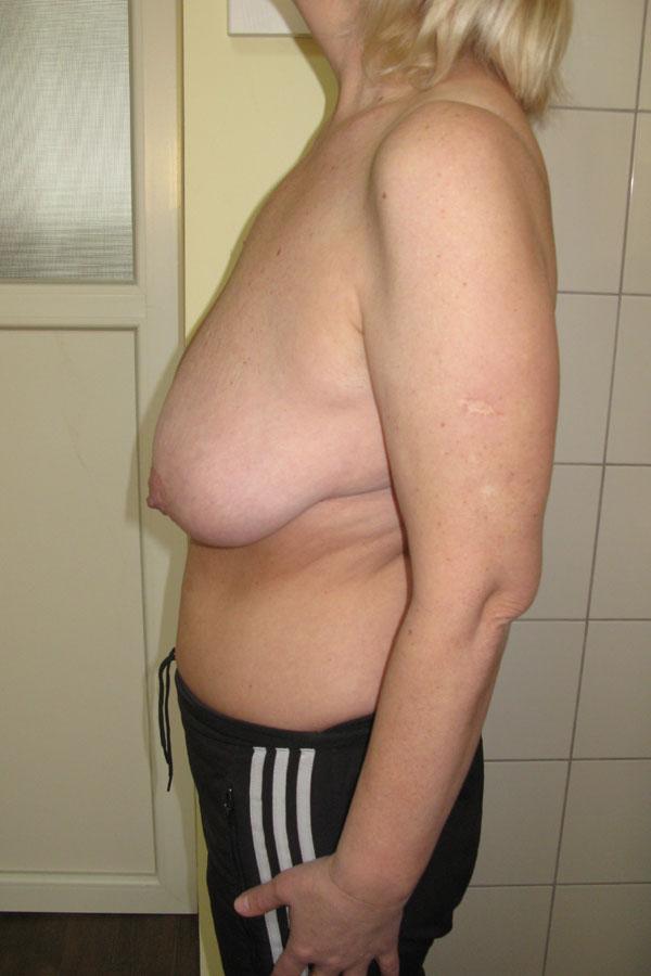 мастопексія підтяжка грудей