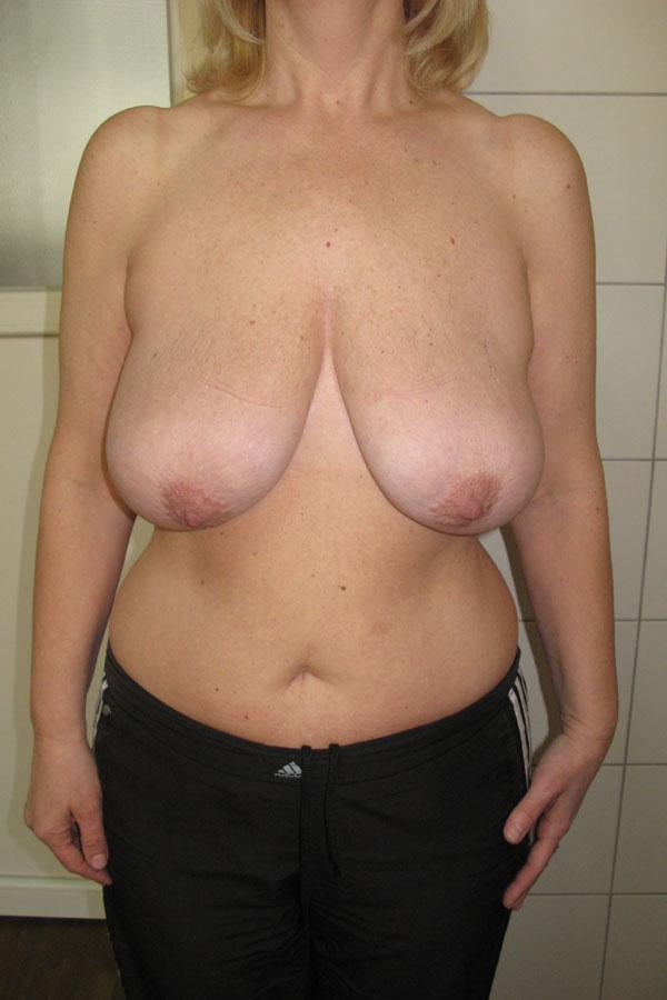 підтяжка грудей мастопексія фото