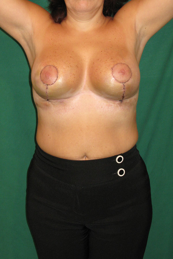 редукційна маммопластика