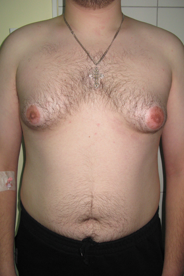 гінекомастія фото