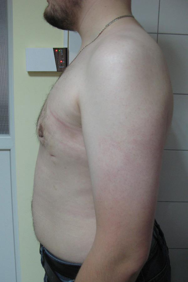 корекція гінекомастії фото